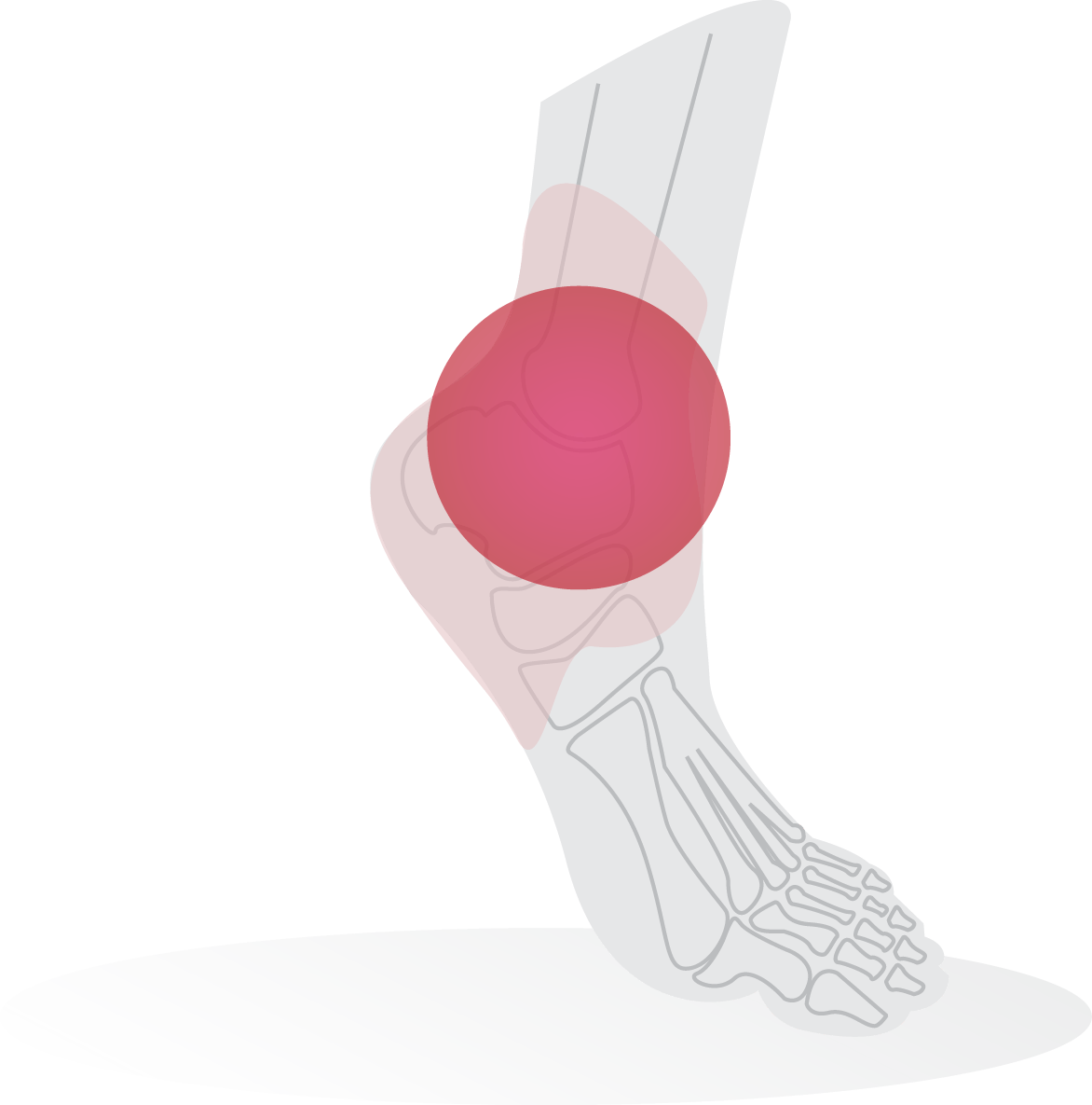 Ankle pressure-point diagram