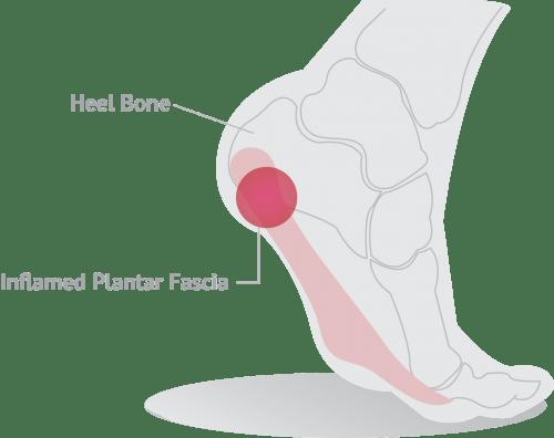 Plantar foot diagram